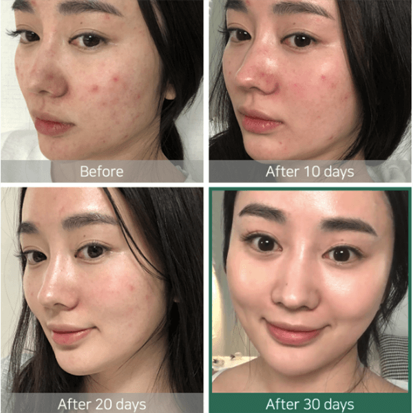 Some By Mi AHA BHA PHA 30 Day Miracle Toner Before and After Results 2
