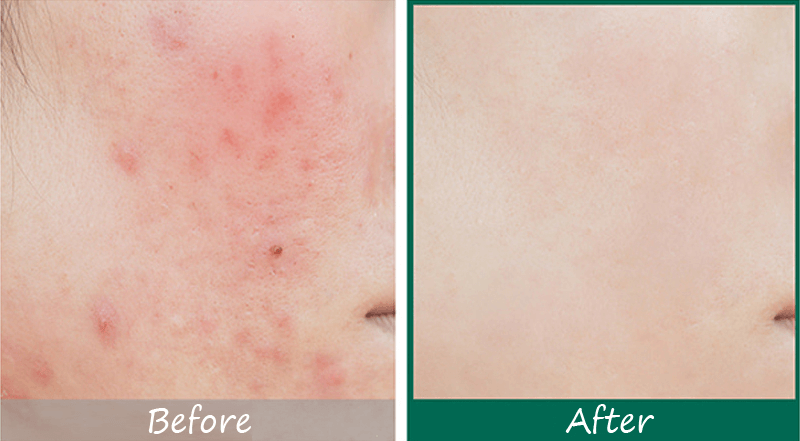 Some By Mi AHA BHA PHA 30 Days Miracle Serum Before and After