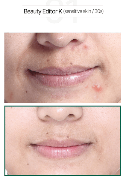 Some By Mi AHA BHA PHA 30 Days Miracle Cream Results 2