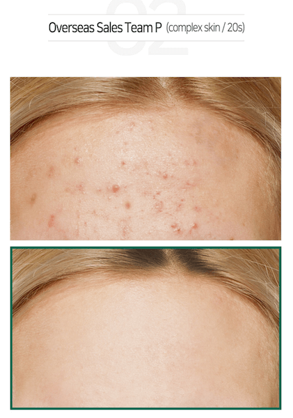 Some By Mi AHA BHA PHA 30 Days Miracle Cream Results 3