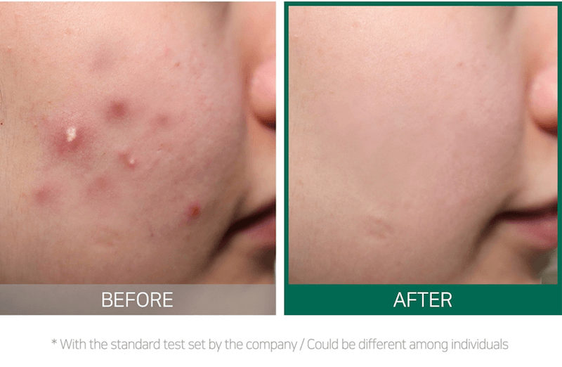 Some By Mi AHA BHA PHA 30 Days Miracle Cream Results